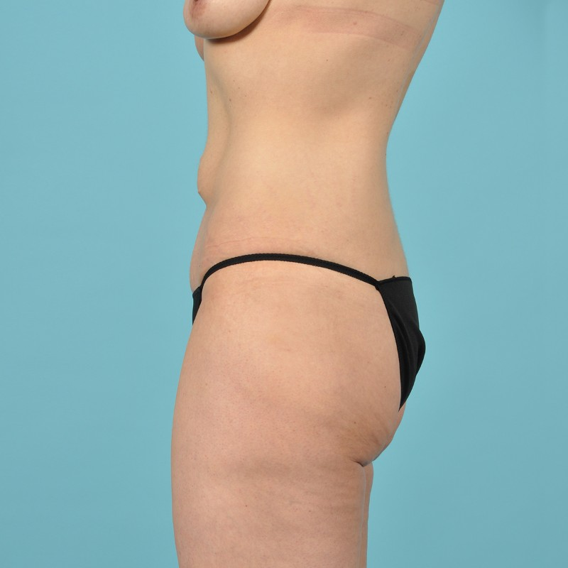 Tummy Tuck Before & After Image Patient 01