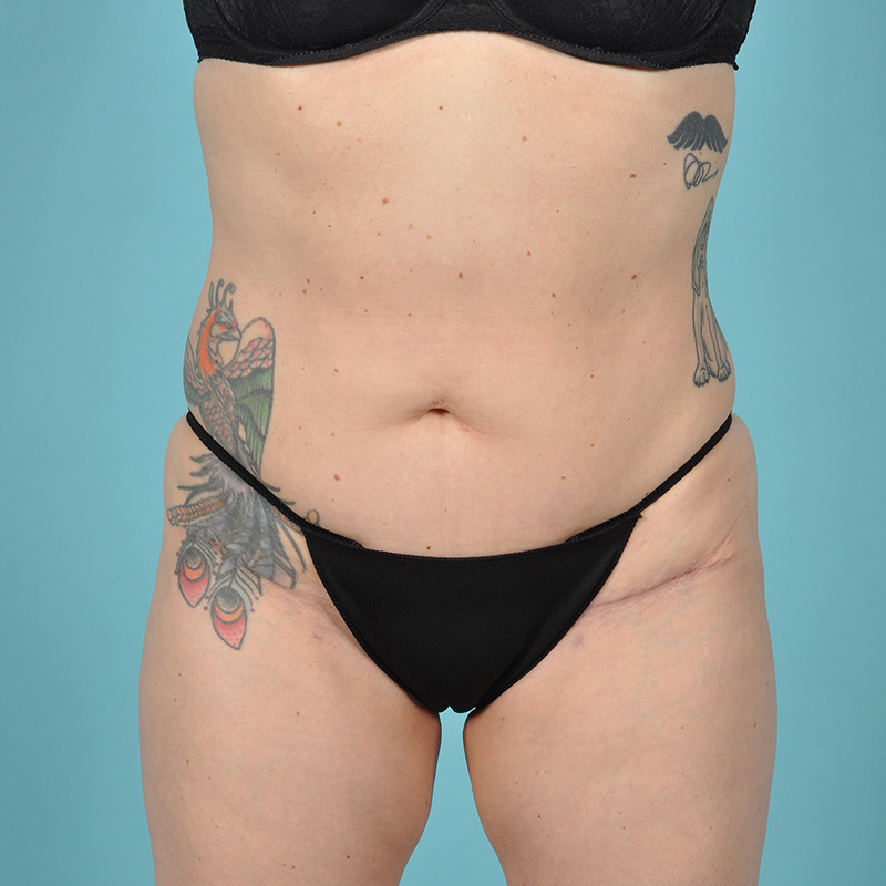Tummy Tuck Before & After Image Patient 08