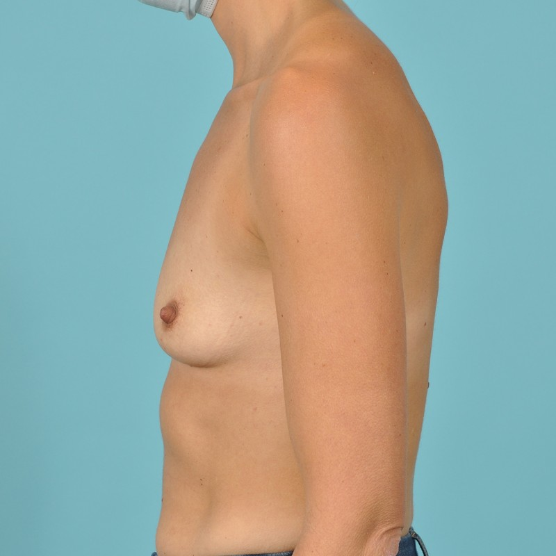 Breast Augmentation Before & After Image Patient 01