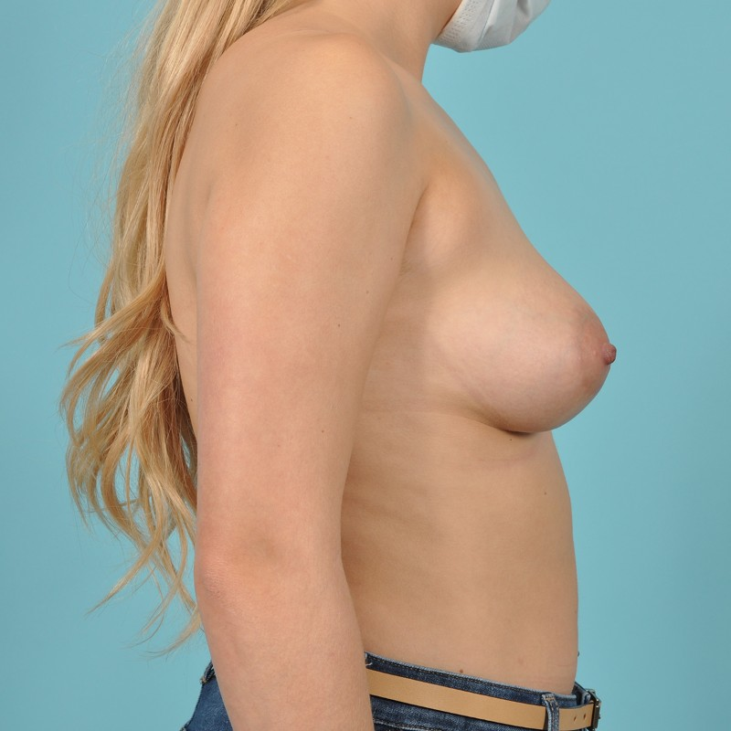 Breast Augmentation Before & After Image Patient 04