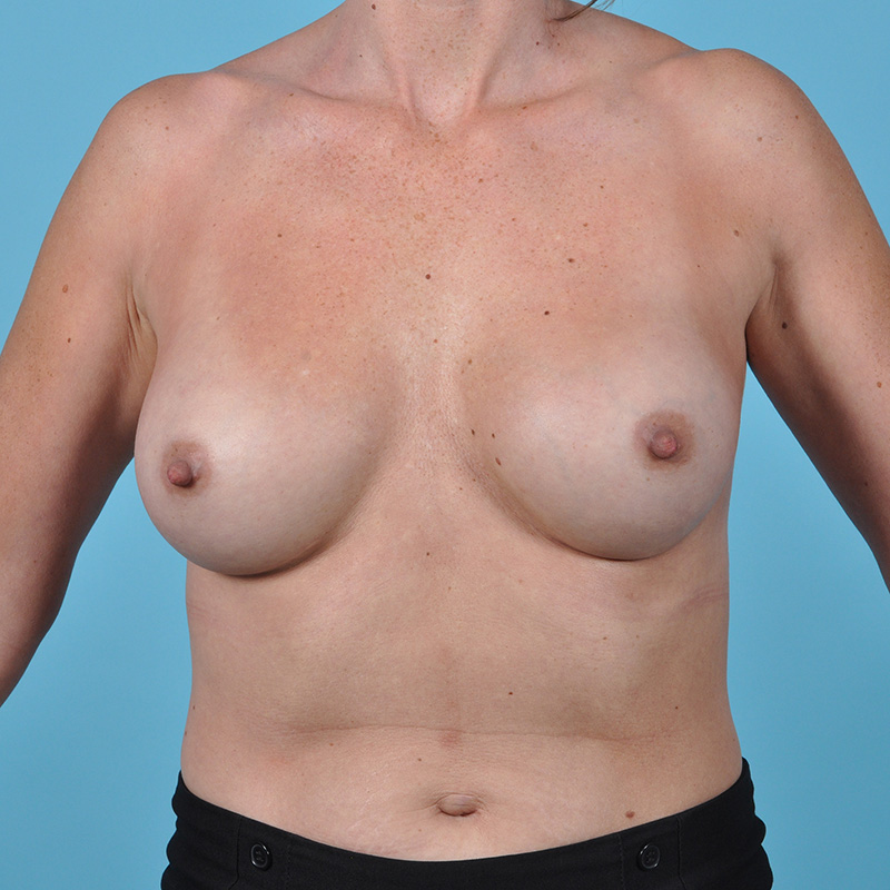 Breast Augmentation Before & After Image Patient 08