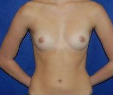 Breast Augmentation Before & After Image Patient 18
