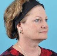 Facelift Before & After Image Patient 05