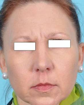Botox Cosmetic Before & After Image