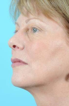 Laser Skin Resurfacing Before & After Image Patient 03