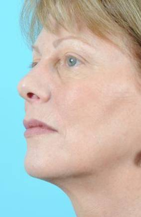 Ultherapy Before & After Image Patient 01